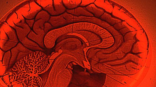 Med thumb brain