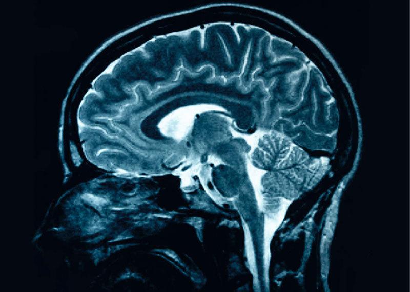Brain Scan Memory Recall