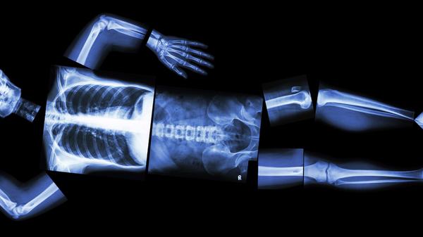 Med thumb sleeping on side x ray